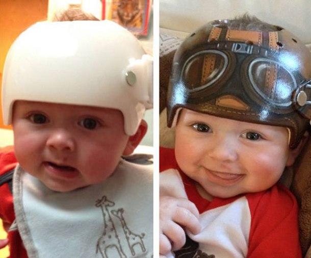 Décoration casque médical enfant