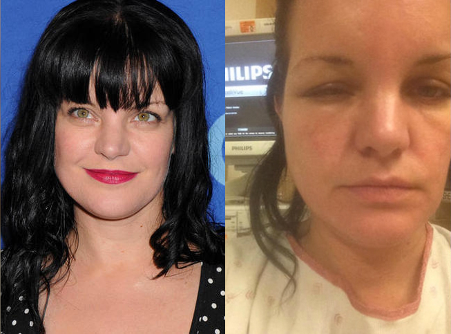 Pauley Perrette allergie coloration cheveux