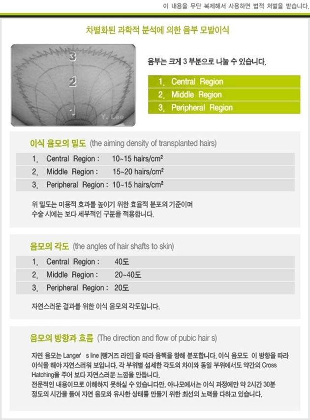 Implants poils pubis Corée