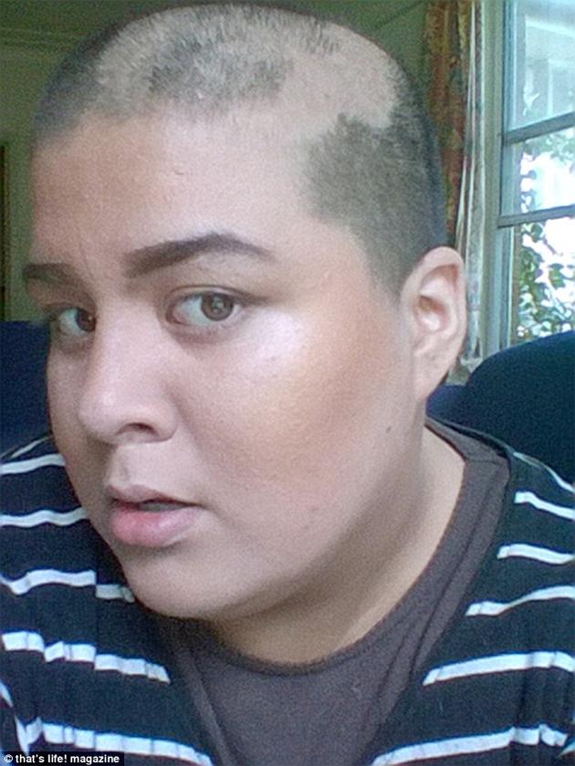 Horrible elle s 39 arrache des poign es de cheveux dans son sommeil coiffure insolite - Gaufre bleu maladie femme photo ...